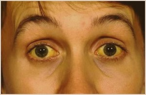 alkogolnyj-gepatit-simptomy-lechenie_2